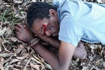 Transeuntes encontram homem ferido na rua  ligam para o o socorro e nada!