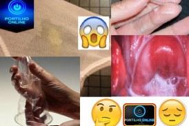 Corrimento vaginal: o que ele pode significar?